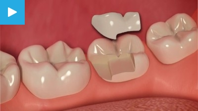 Worn & Chipped teeth